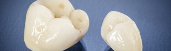 Are You Looking For Dental Restorations in Port Orange?
