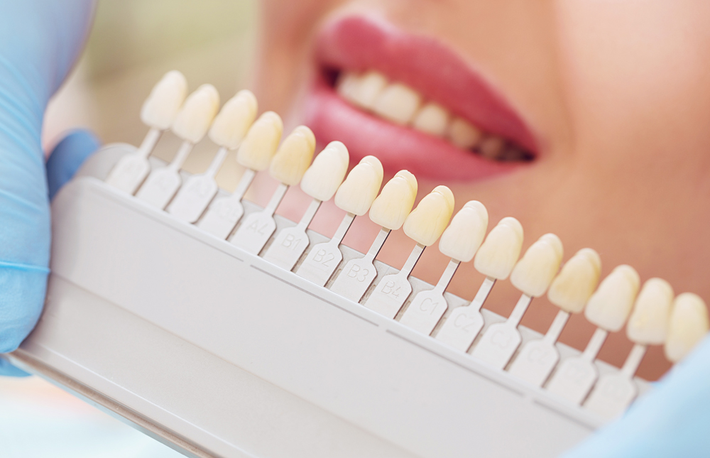 Port Orange Cosmetic Dentistry