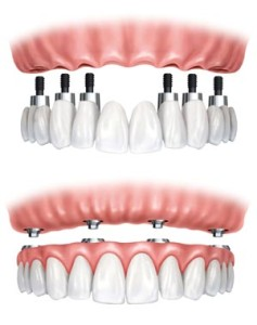 dental implants Port Orange