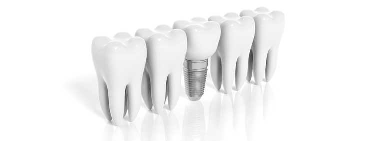 page_dental_implant_envision