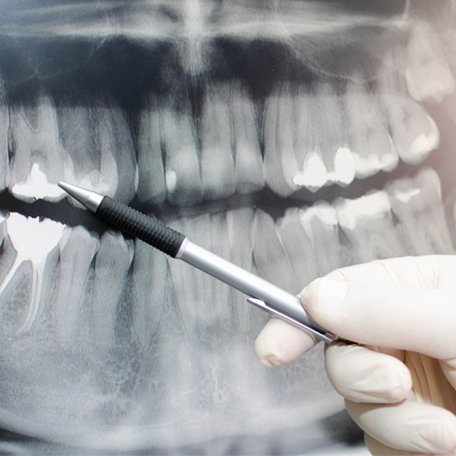 Periodontists - X-Ray Of Teeth