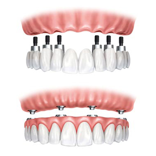 Dental Implants in Port Orange