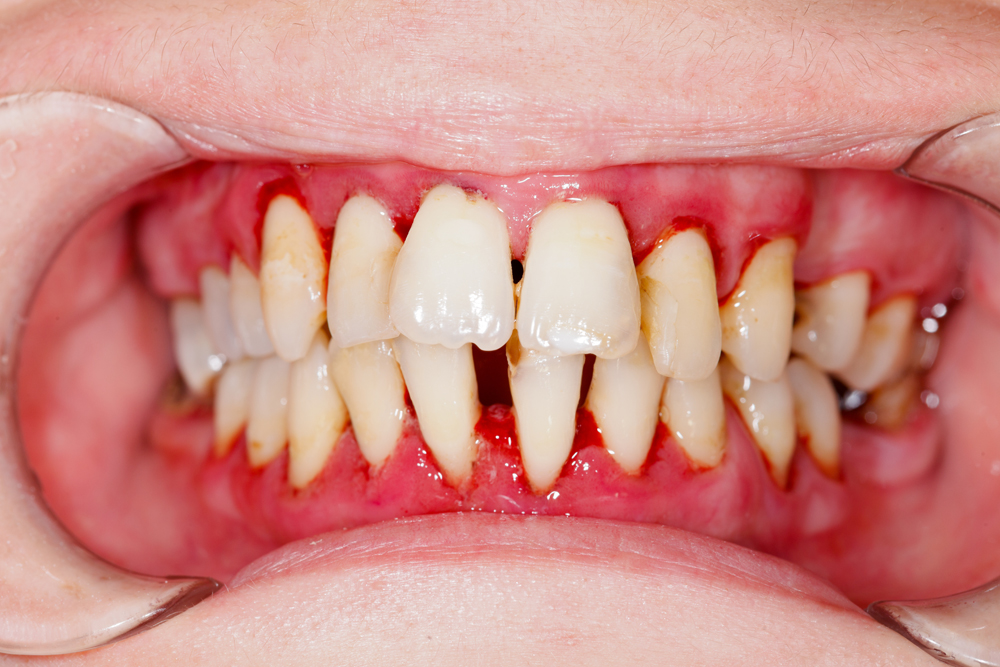 Gum Disease - Periodontists